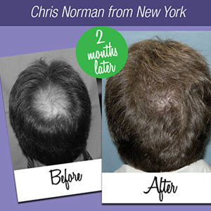 Natural Hair Loss Treatment System