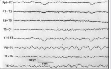 Temporal Complex Partial Seizures Eeg